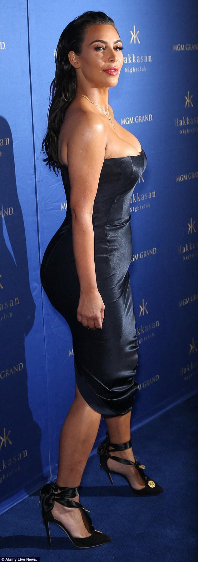 Kim Kardashian đau đớn, da xấu vì mắc bệnh vảy nến - 2