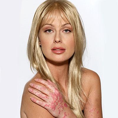 Kim Kardashian đau đớn, da xấu vì mắc bệnh vảy nến - 6