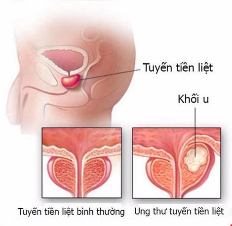 10 căn bệnh ung thư có nguy cơ cao với nam giới - 1