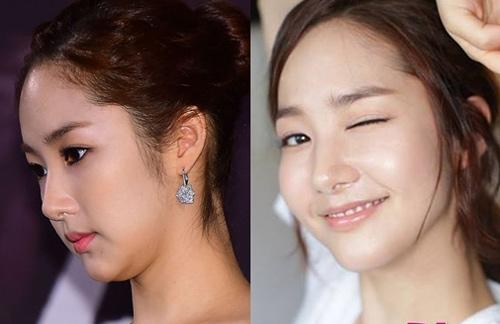 Vỡ mộng trước ảnh bị chụp và tự chụp của tình cũ Lee Min Ho - 6