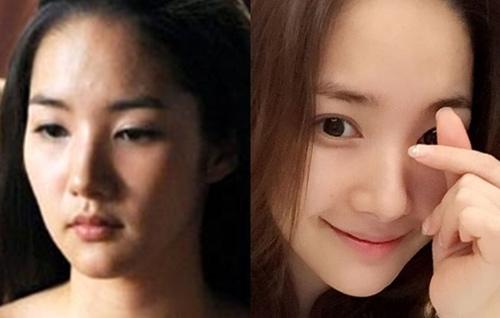 Vỡ mộng trước ảnh bị chụp và tự chụp của tình cũ Lee Min Ho - 9