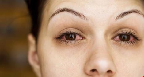 15 nguyên nhân khiến mắt bạn thường xuyên bị đỏ - 1