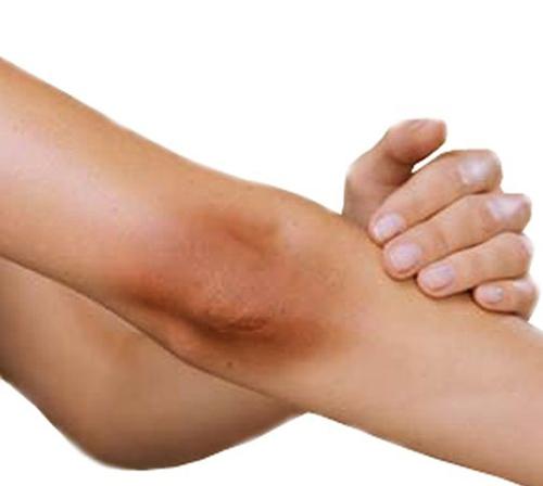 13 mẹo đơn giản giúp khuỷu tay mịn, trắng đều - 3