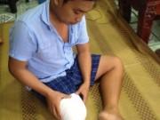 Vụ bệnh nhân bị cưa chân: Bộ Y tế yêu cầu xử lý nghiêm