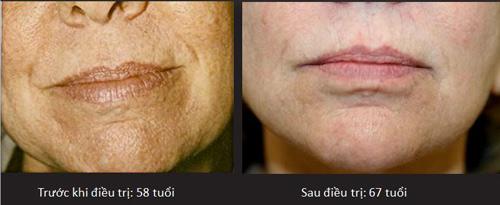 Nếp nhăn xuất hiện do mất collagen, chưa hẳn đã đúng! - 4