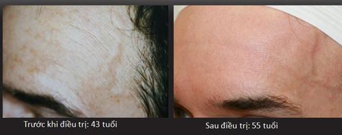 Nếp nhăn xuất hiện do mất collagen, chưa hẳn đã đúng! - 5