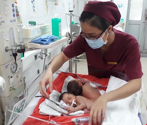 Hai bé song sinh dính liền mông, không thấy hậu môn - 2