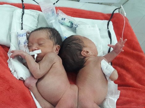 Hai bé song sinh dính liền mông, không thấy hậu môn - 3