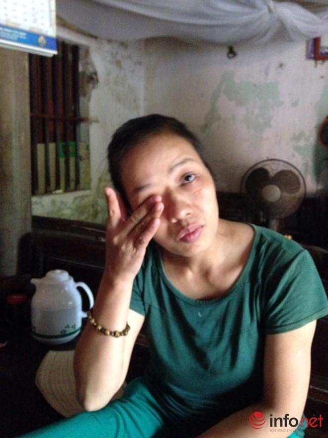 Sản phụ bị ung thư vòm họng, chấp nhận mù quyết tâm sinh con - 1