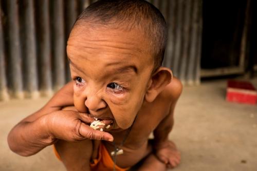 Cậu bé 4 tuổi bị xa lánh vì ngoại hình như ông lão - 6