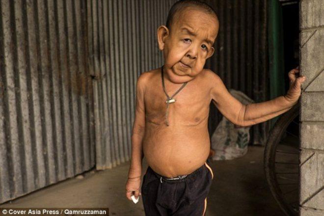 Mắc bệnh lạ, cậu bé 4 tuổi trông như ông lão 80 - 1
