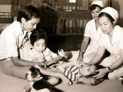 Đau lòng những ca song sinh dính liền oái oăm ở Việt Nam - 3