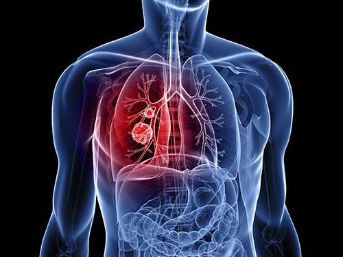 Căn bệnh ung thư phổ biến nhưng khó phát hiện nhất hiện nay - 1