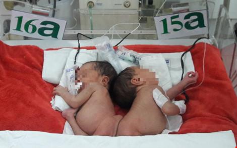 Hai bé song sinh dính mông: Sau phẫu thuật sẽ thế nào? - 1