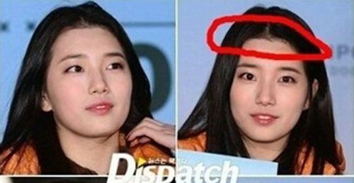 Bạn gái Lee Min Ho bị tố phẫu thuật thẩm mỹ nhiều lần - 1