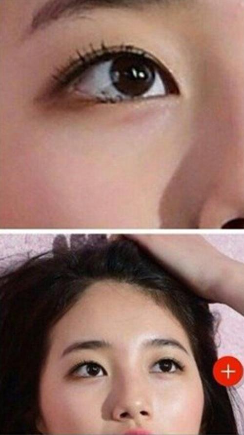 Bạn gái Lee Min Ho bị tố phẫu thuật thẩm mỹ nhiều lần - 6