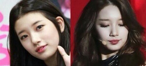 Bạn gái Lee Min Ho bị tố phẫu thuật thẩm mỹ nhiều lần - 4