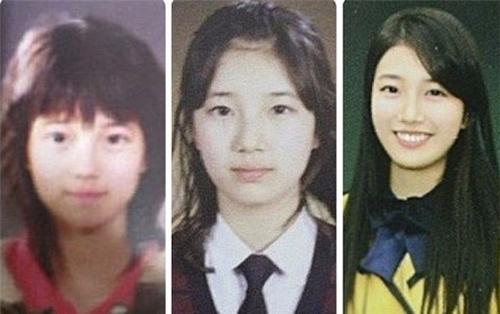 Bạn gái Lee Min Ho bị tố phẫu thuật thẩm mỹ nhiều lần - 5
