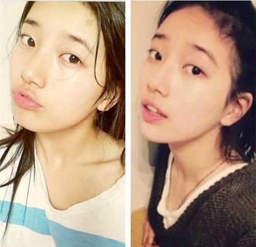 Bạn gái Lee Min Ho bị tố phẫu thuật thẩm mỹ nhiều lần - 8