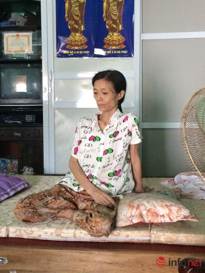 Lời khẩn cầu của bà mẹ bị ung thư vú mong cứu con bị suy thận - 1