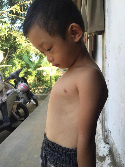 Gia cảnh nghèo của cậu bé 4 tuổi dị dạng lồng ngực - 1