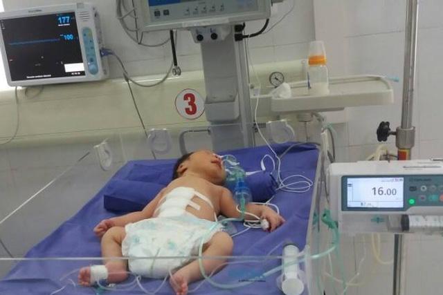 3 giờ cứu bé sơ sinh bị lòi toàn bộ ruột, tạng - 2