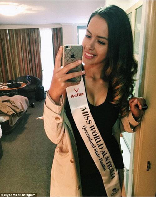 Hoa hậu 17 tuổi người Úc gặp tai nạn nghiêm trọng - 1
