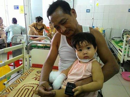 Bố mẹ ngủ trưa, con 2 tuổi đút tay vào ổ điện - 1