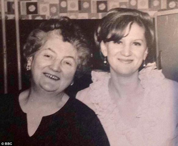 Kì lạ người phụ nữ 63 tuổi có quả thận 100 năm tuổi - 2