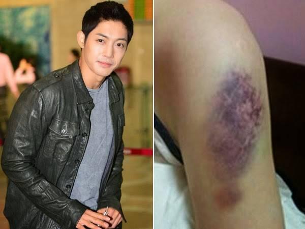 Tài tử Vườn sao băng Kim Hyun Joong thắng kiện bạn gái cũ - 2