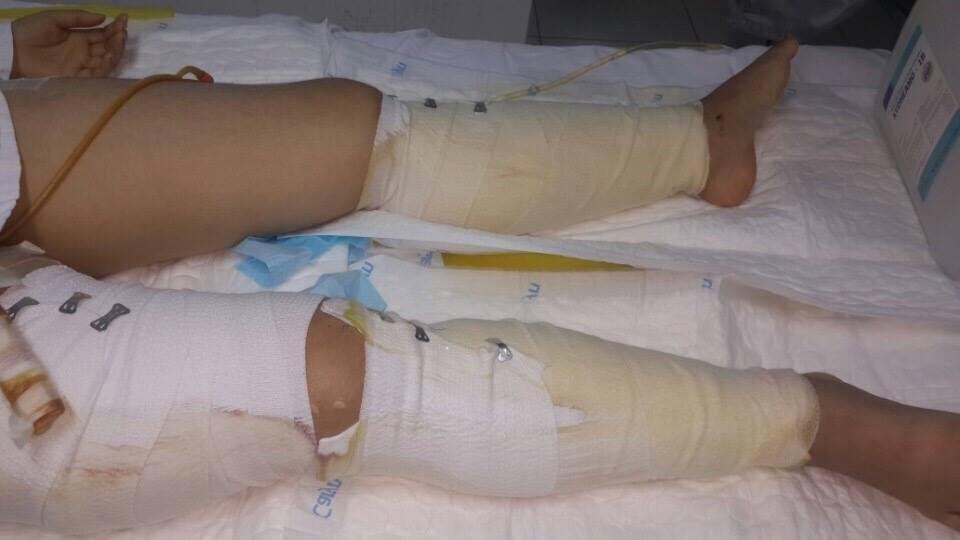 Vụ sập nhà giữa HN: Tin mới nhất về sức khỏe cô gái 18 tuổi - 1