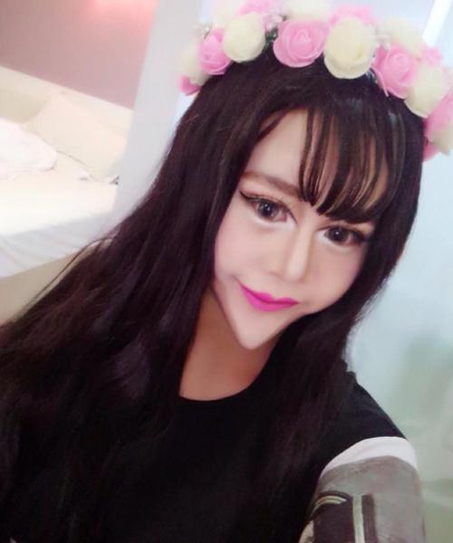 Cô gái TQ khiến mọi người sợ hãi vì khuôn mặt biến dị - 4