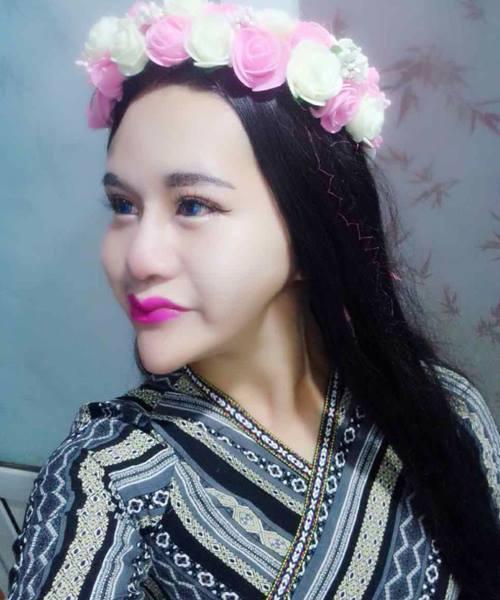 Cô gái TQ khiến mọi người sợ hãi vì khuôn mặt biến dị - 5