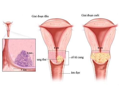 Chuyên gia đầu ngành chia sẻ 4 bước phát hiện sớm ung thư cổ tử cung - 1