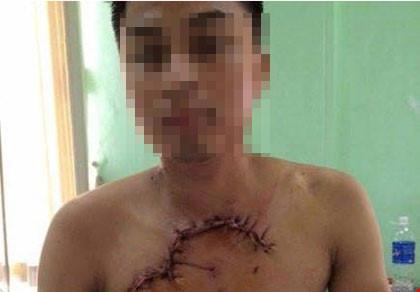 Cứu sống bệnh nhân bị tai nạn, tim phổi lộ ra ngoài thành ngực - 1