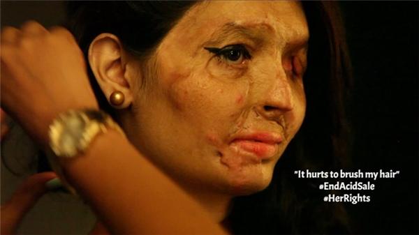 Mỹ nữ hỏng mặt vì axit sẽ bước trên sàn diễn New York - 3