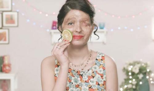 Mỹ nữ hỏng mặt vì axit sẽ bước trên sàn diễn New York - 5
