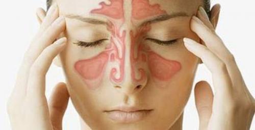 3 bài thuốc chữa viêm xoang nổi tiếng hiệu quả ngay lần đầu áp dụng - 1