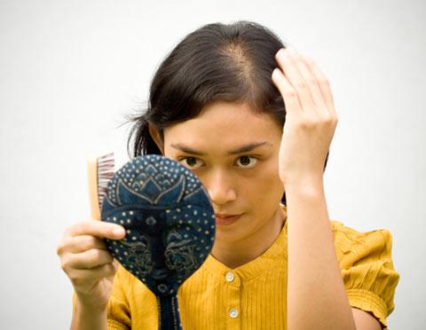 Cảnh báo bệnh nguy hiểm từ chứng rụng tóc quá nhiều - 1