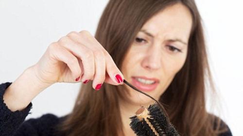 Cảnh báo bệnh nguy hiểm từ chứng rụng tóc quá nhiều - 4