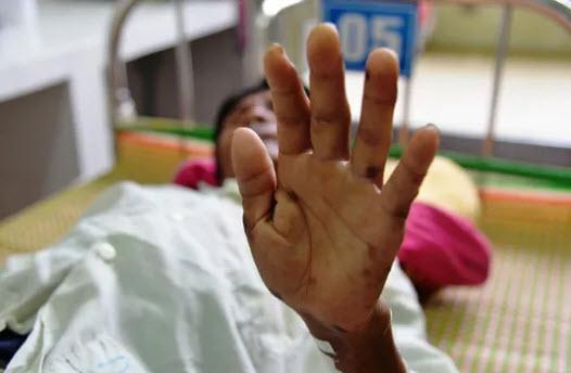 """Phát hiện 2 trường hợp mắc bệnh """"lạ"""" ở Quảng Ngãi - 2"""