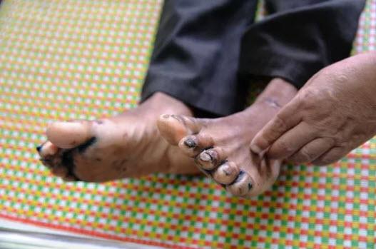 """Phát hiện 2 trường hợp mắc bệnh """"lạ"""" ở Quảng Ngãi - 3"""