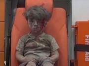 Hình ảnh bé trai Syria nhem máu rung động cả thế giới