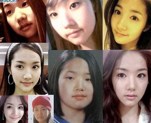 Bồ cũ Lee Min Ho xinh đẹp rạng ngời sau 5 lần dao kéo - 7