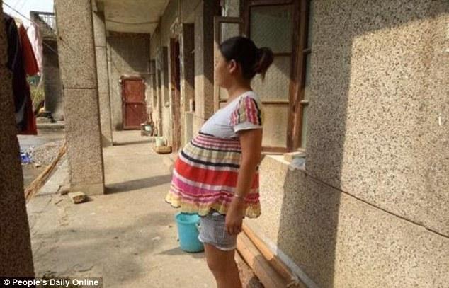 TQ: Bà mẹ mang thai 17 tháng vẫn chưa sinh con - 1