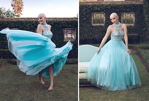 Ung thư không ngăn cô gái 17 tuổi xinh như công chúa - 1