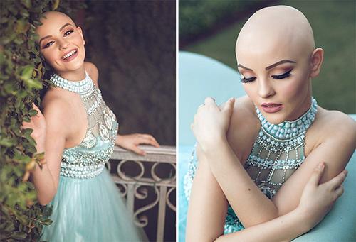 Ung thư không ngăn cô gái 17 tuổi xinh như công chúa - 2