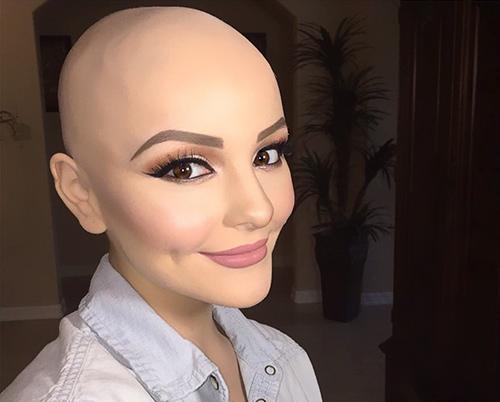 Ung thư không ngăn cô gái 17 tuổi xinh như công chúa - 3