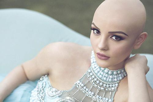 Ung thư không ngăn cô gái 17 tuổi xinh như công chúa - 5