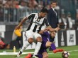 """Juventus - Fiorentina: Giá trị của """"bom tấn"""""""